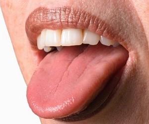 Белый налет на языке: 7 натуральных средств в помощь!