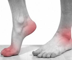 симптомы при растяжении связок коленного сустава