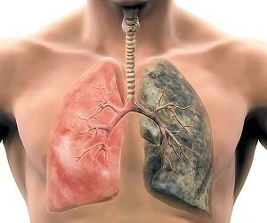 7 способов, которые уменьшат последствия курения