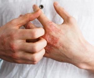 4 лучших домашних средства от кожной аллергии