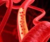 очищение сосудов холестерина действенных рецепта