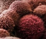 жир провоцирует появление смертельных раковых опухолей