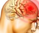 шейная мигрень отдых лечение