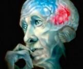 болезнь альцгеймера необходимо обращаться врачу