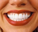 лучших домашних средств помогут удалить зубной налет