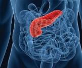 Врачи назвали главные симптомы рака поджелудочной железы