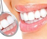 советов домашнего отбеливания зубов