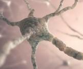 ученые нашли возможную причину развития рассеянного склероза