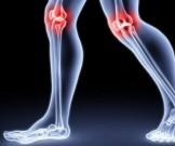 упражнений помогут укрепить колени