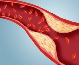 нарушение липидного обмена нормализовать уровень холестерина