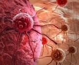 Названы симптомы, которые говорят о развивающемся раке