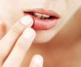 снижение защитных сил организма провоцирует герпес губах
