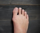 косточка большом пальце причины профилактика лечение