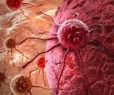 самых распространенных видов рака симптомы