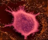 эксперты рассказали эпидемией рака женщин