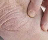уход кожей локтях очищение увлажнение питание