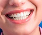 топ-10 способов удалить зубной налет помощью натуральных средств