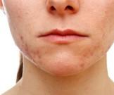 косметические проблемы означать серьезную болезнь