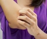 средств помогут расчесывать комариные укусы